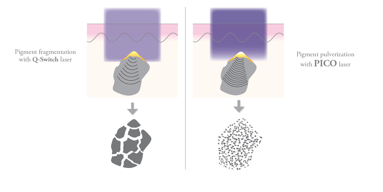 Picosecond Lasers break up pigments more effectively